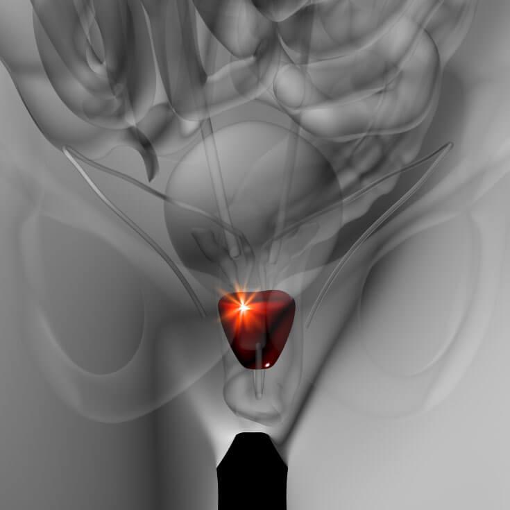 דלקת הערמונית רק הירודותרפיה (טיפול בעלוקות)!