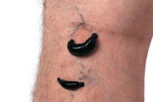טיפול בורידים ונימים בולטים עם עלוקות