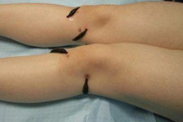 טיפול בדלקת פרקים עם עלוקות רפואיות