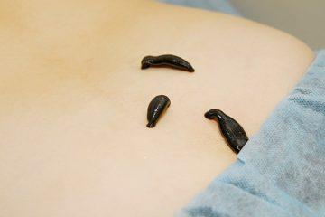 טיפול בעלוקה רפואיות ללחץ דם גבוה