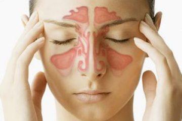 טיפול בעלוקות בסינוסיטיס